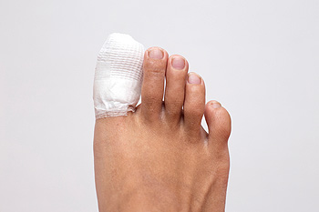 Image result for toe injury""