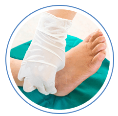 Surgical Correction of Foot Problems in Lansing, IL 60438 & Chicago, IL 60617